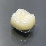 かぶせ物(1歯)